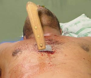 Removal of the knife is an absolute last resort, as it likely could contribute to further exsanguinating hemorrhage.