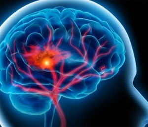 Stroke is one of the high-risk time-sensitive conditions  that benefits from a systems of care approach.