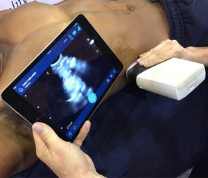 Point of care ultrasound has many prehospital applications. (Photo/Greg Friese)