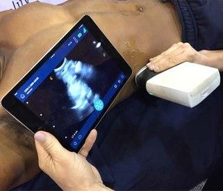 Prehospital ultrasound: Emerging technology for EMS