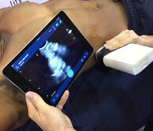 A handheldwirelessultrasoundscanner.