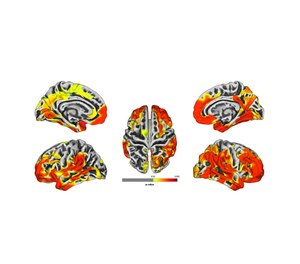 These brain images are a compilation of MRI results from 9/11 responders. The images show gray matter atrophy on the brain, with yellow and red areas revealing statistically significant atrophy compared to the normal population. Red areas show worse atrophy than yellow. (Photo/Stony Brook University)