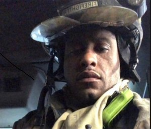 Buffalo Fire Department firefighter Eric Whitehead suffered third-degree burns to his hands while battling a blaze.