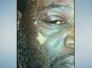 The assaulted officer is shown here with chemical burns to his face. (Photo Times Warner)