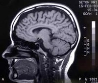 How the human brain works against firefighter safety