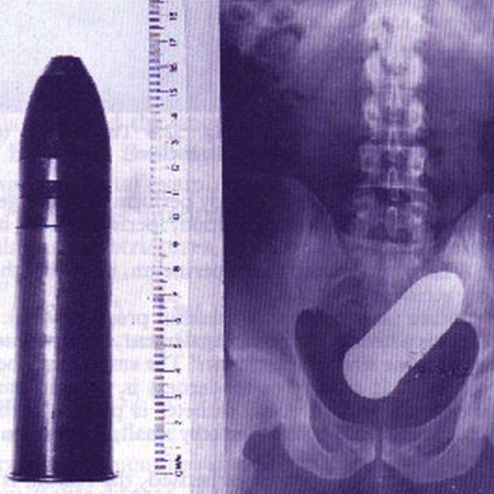 weird things people put up their butt: bullet