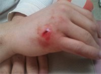 """Case study: """"I fell and hurt my hand"""""""
