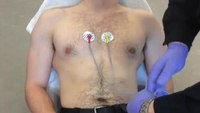 A simplified method for 12-lead ECG electrode placement