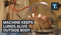 Machine keeps lungs awaiting transplant perfused