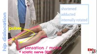 Hip dislocation assessment and treatment