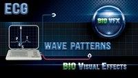 Why a normal ECG has five visible waveforms