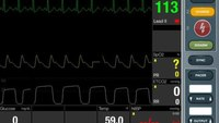 Simulated patient monitor video