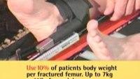 Sager Splints - S304