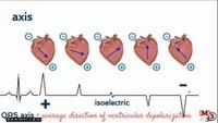 EKG interpretation training review