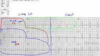 How to map an ECG