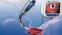 GlideScope® Video Laryngoscope