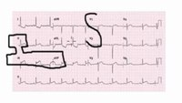 Tip: Associate anatomical locations on a 12-lead ECG