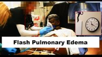 How to treat flash pulmonary edema