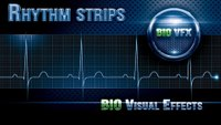 How to calculate heart rate with 6-second ECG strip