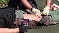 Wound packing and soak through procedures