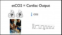 Use capnography for a patient in cardiac arrest
