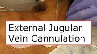 How to cannulate the external jugular vein