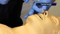 Close-up of nasal intubation procedure