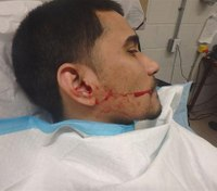Violence behind bars continues: 1 NY CO stabbed in ear with pen