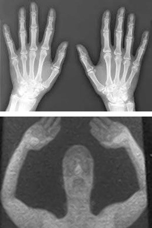 On top is an x-ray scan, below is a body scan.