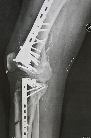 X-ray of his leg. (Photo courtesy of William An)