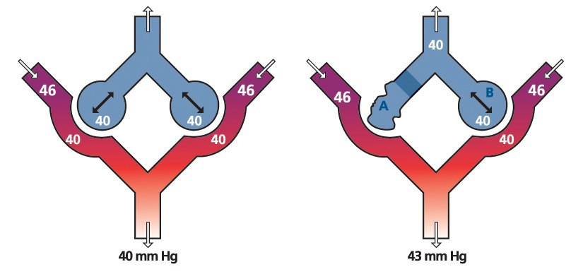 Capnography encompasses more than just ventilations – it also includes perfusion. (image/Medtronic)