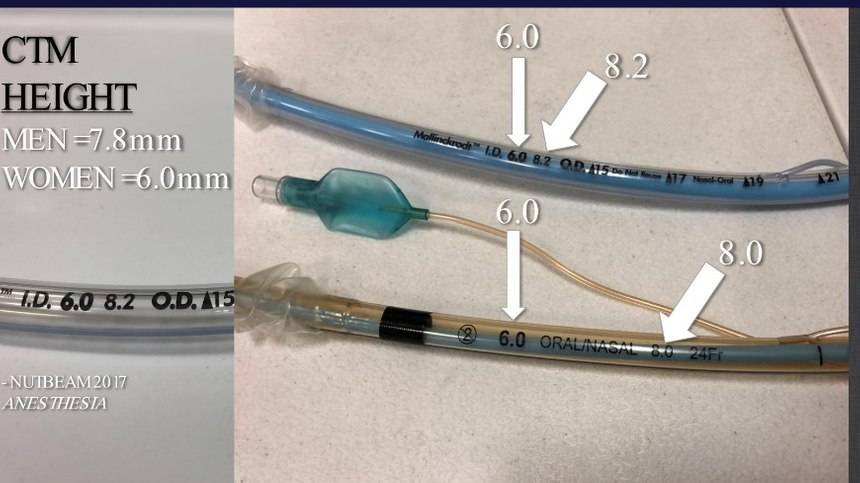 Drew, Khan, and McCaul (2019) discovered the insertion of an i-gel supraglottic airway device assisted in the 66% accuracy of locating the CTM in female patients [5]. (Photo/Courtesy Cynthia M. Griffin, DO, NRP)