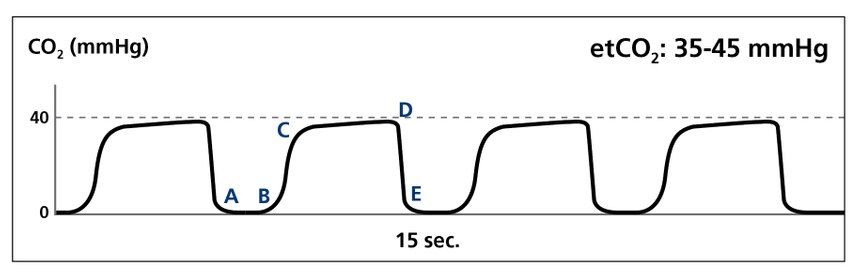 """COVID patients don't necessarily present with a specific waveform like the """"shark fin"""" for bronchospasm. You may see the """"normal"""" pattern represented by this reading, or another pattern that indicates respiratory distress. (image/Medtronic)"""
