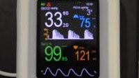 Cardiogenic Oscillations on VM-2500V capnograph pulse oximeter