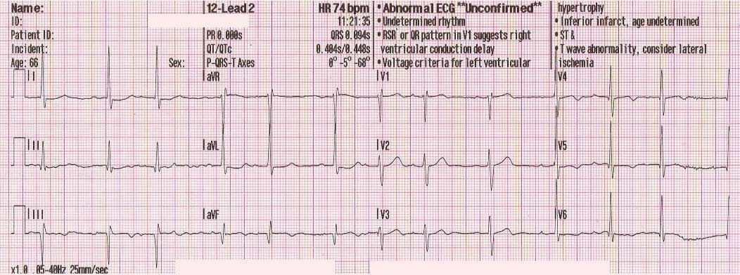 Why EMS Captures A 12 Lead EKG With The First Set Of Vital Signs